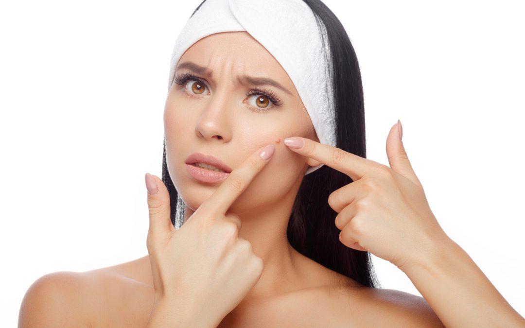 Você sofre com o excesso de acne?