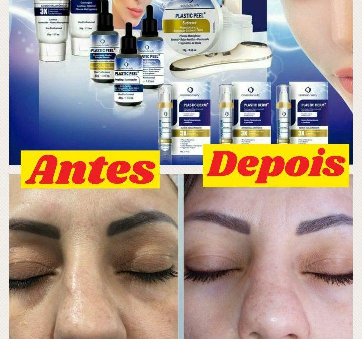 Conheça o tratamento facial Plastic Peel